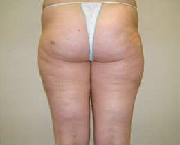 Cellulite After